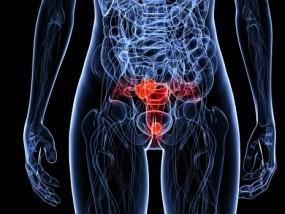 hpv-cancer-colo-utero-cervical